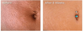 Trilastin Sr Review Does This Product Really Work