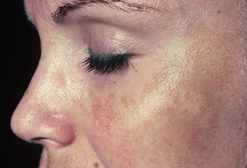 Melasma Common Causes