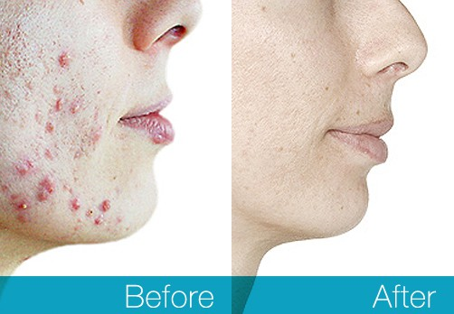 acne treatment reviews best products and our re mendations