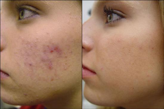 http://www.monicasbeauty.com/best-acne-treatment/neutrogena-skin-id-reviews/