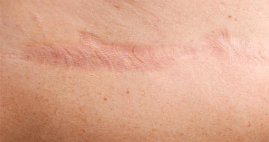 Image Gallery skin scars