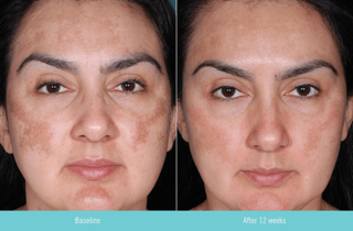 Obagi Nu-Derm Clear before and after