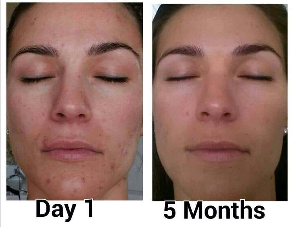 Before and After Nerium AD