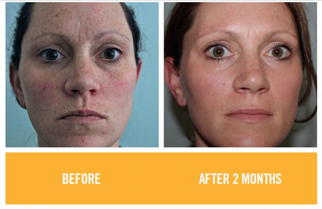 Rodan and Fields - Before and After