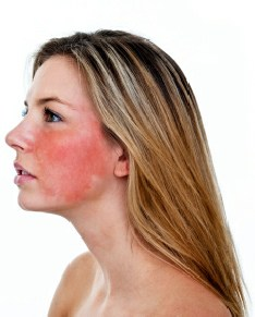 Simple & Effective Home Remedies for Treating Rosacea
