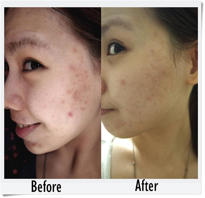 neostrata before and after testimonial