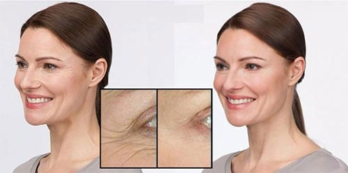 before and after shots for an anti aging product