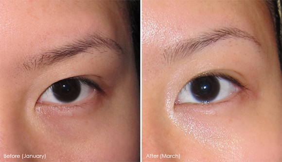 Dark Circles Before & After