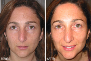 Before - After Strivectin SD